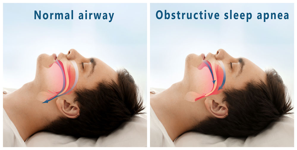 a guy sleeping showing the different types of sleep apnea
